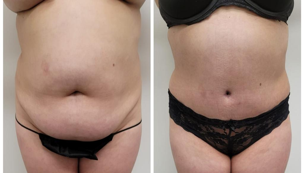 Tummy Tuck Surgeon Camarillo