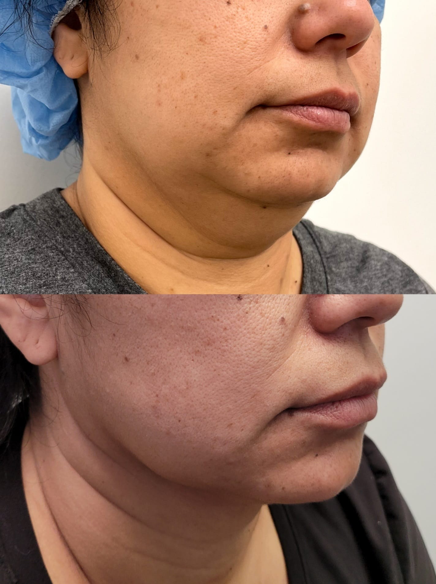 liposuction top treatment surgery in Oxnard