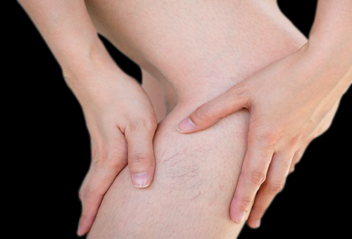 varicose vein removal