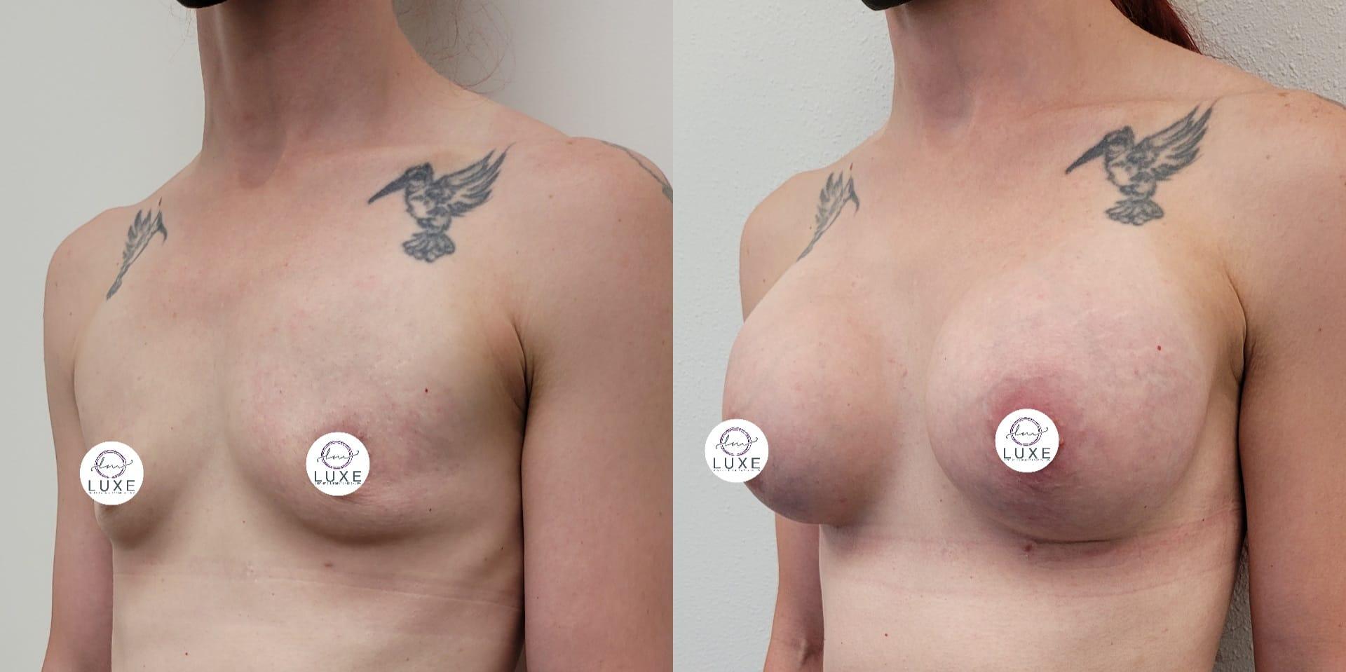 best breast augmentation doctor camarillo