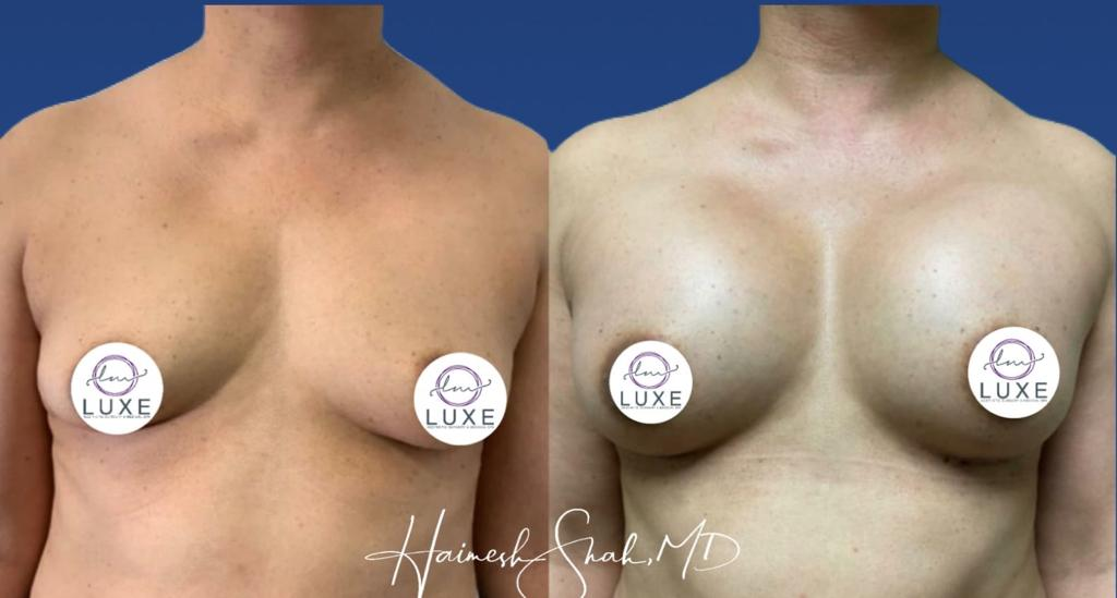 best breast clinic