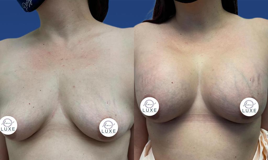 best breast augmentation doctor camarillo