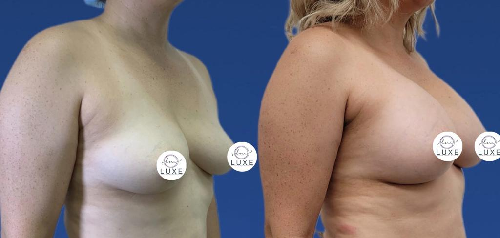 best breast augmentation doctor oxnard