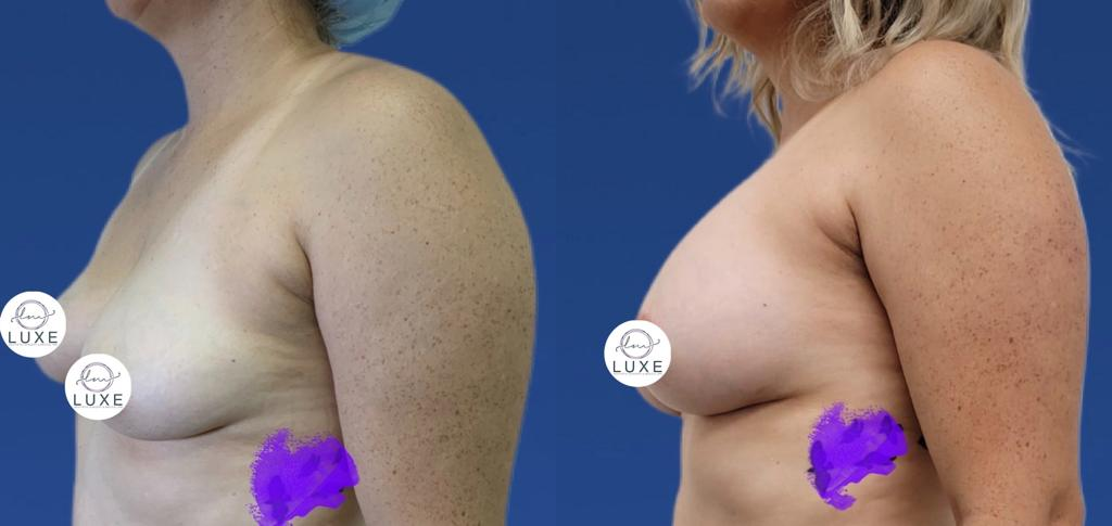 best breast augmentation surgery ventura