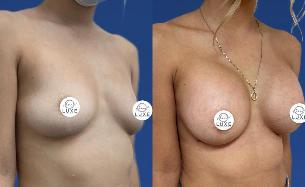 top breast augmentation doctor ventura