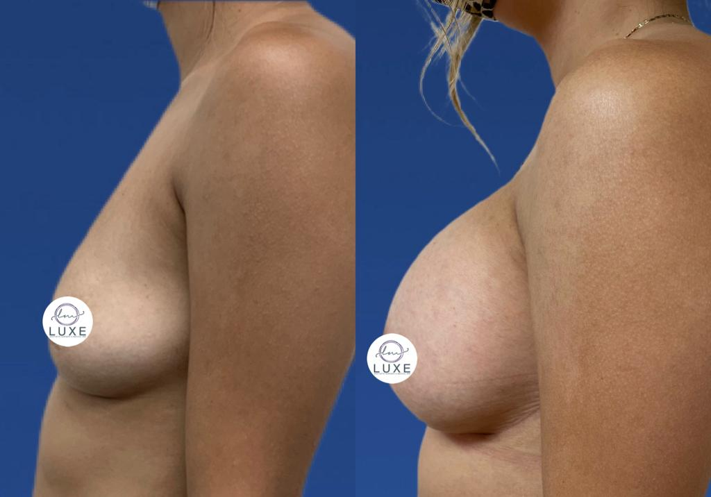 top breast augmentation treatment ventura