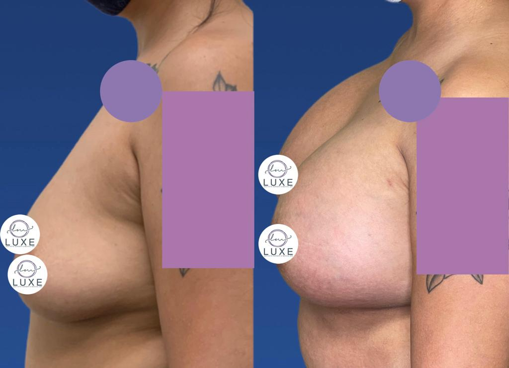 top breast augmentation surgeon simi valley