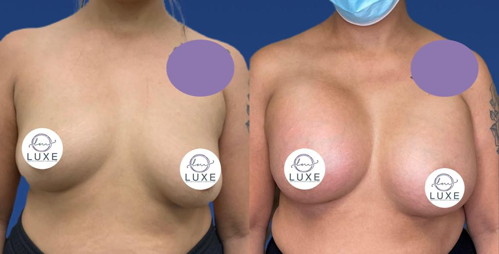 top breast augmentation surgery simi valley