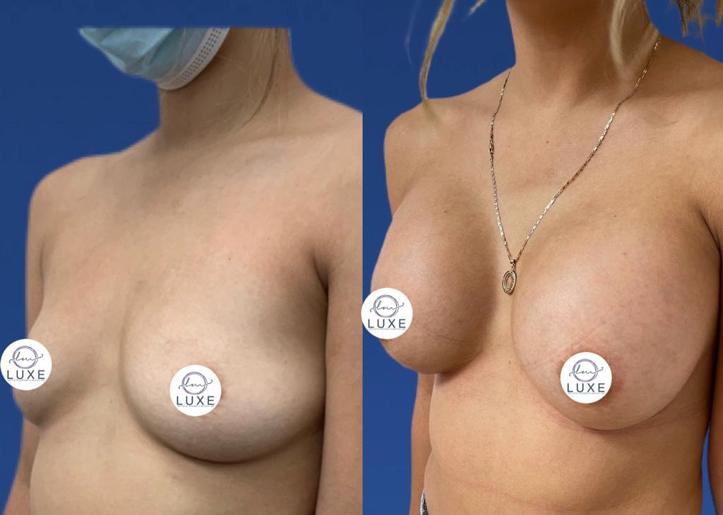 top breast augmentation surgery ventura