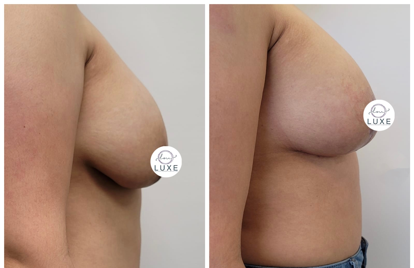 best breast lift surgeon ventura