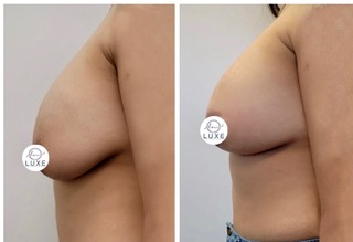 best breast lift oxnard