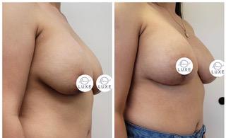 best breast lift surgeon oxnard