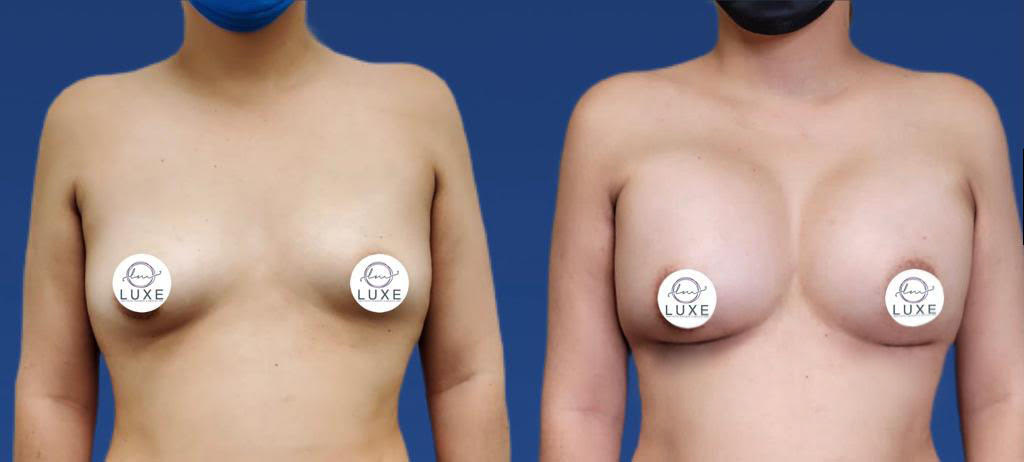 top breast augmentation oxnard