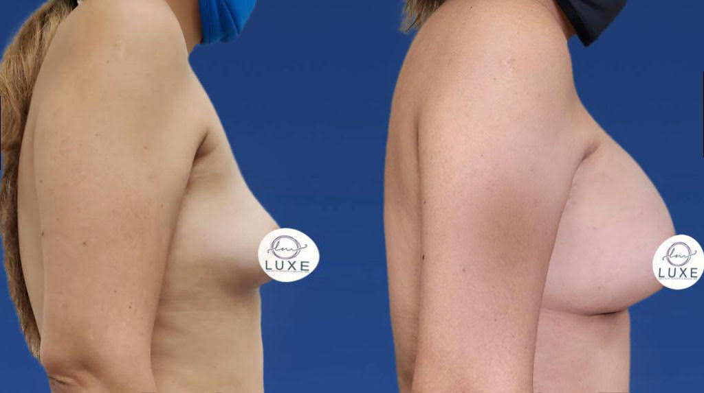 top breast augmentation surgeon oxnard