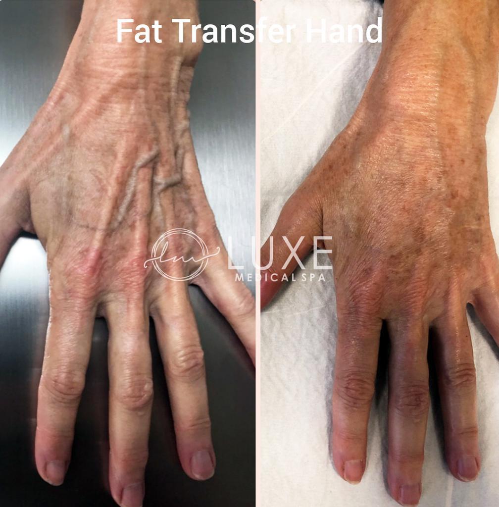 hand-rejuvenation surgeon