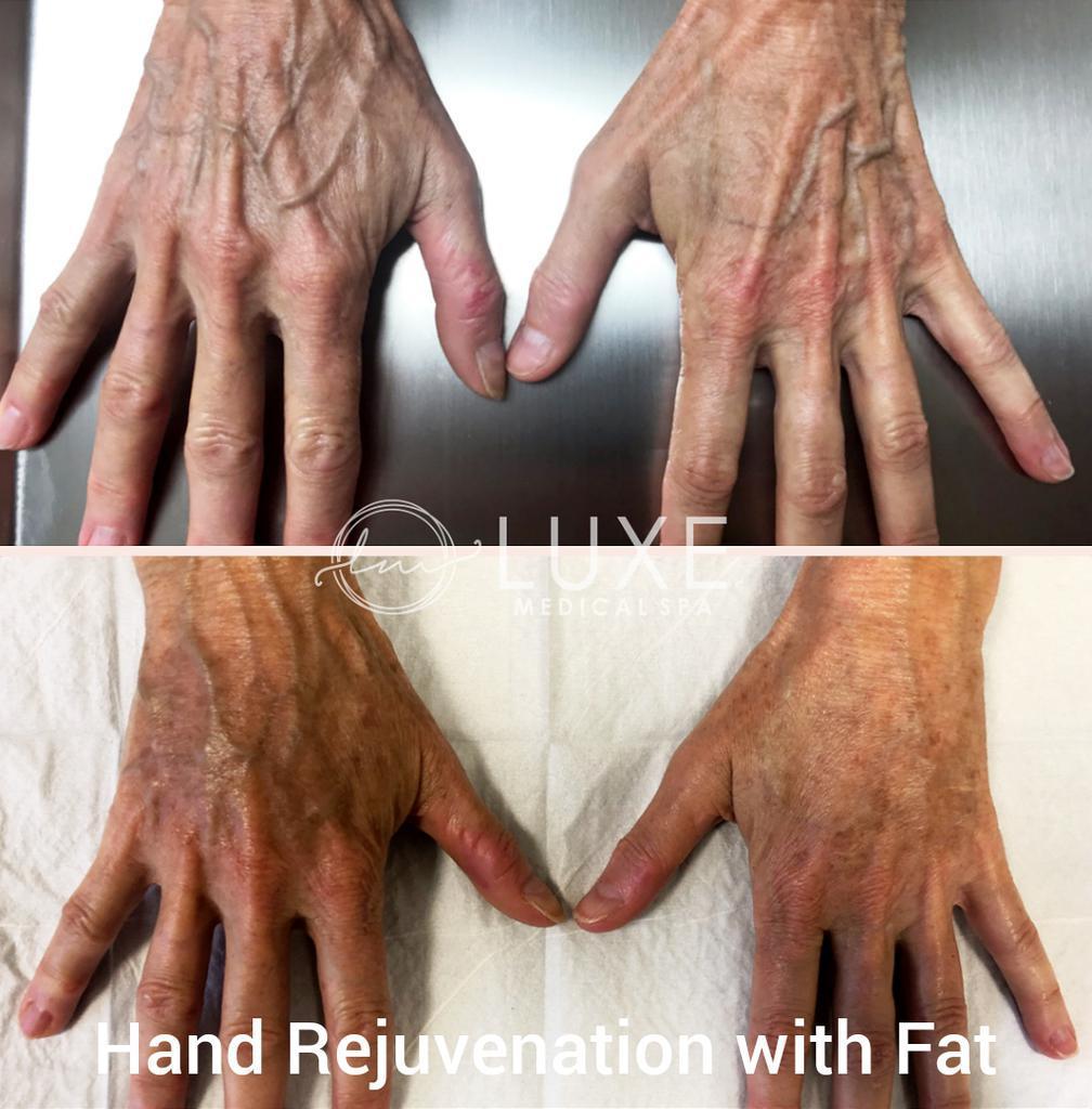 hand-rejuvenation clinic