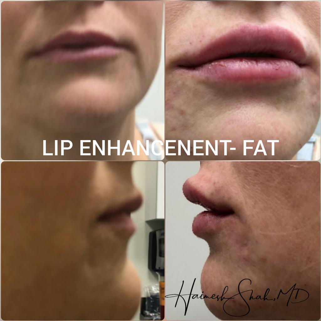 lip injection treatment