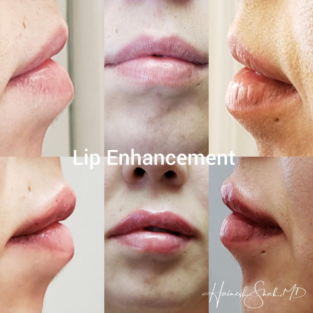 Lip Enhancements Ventura County