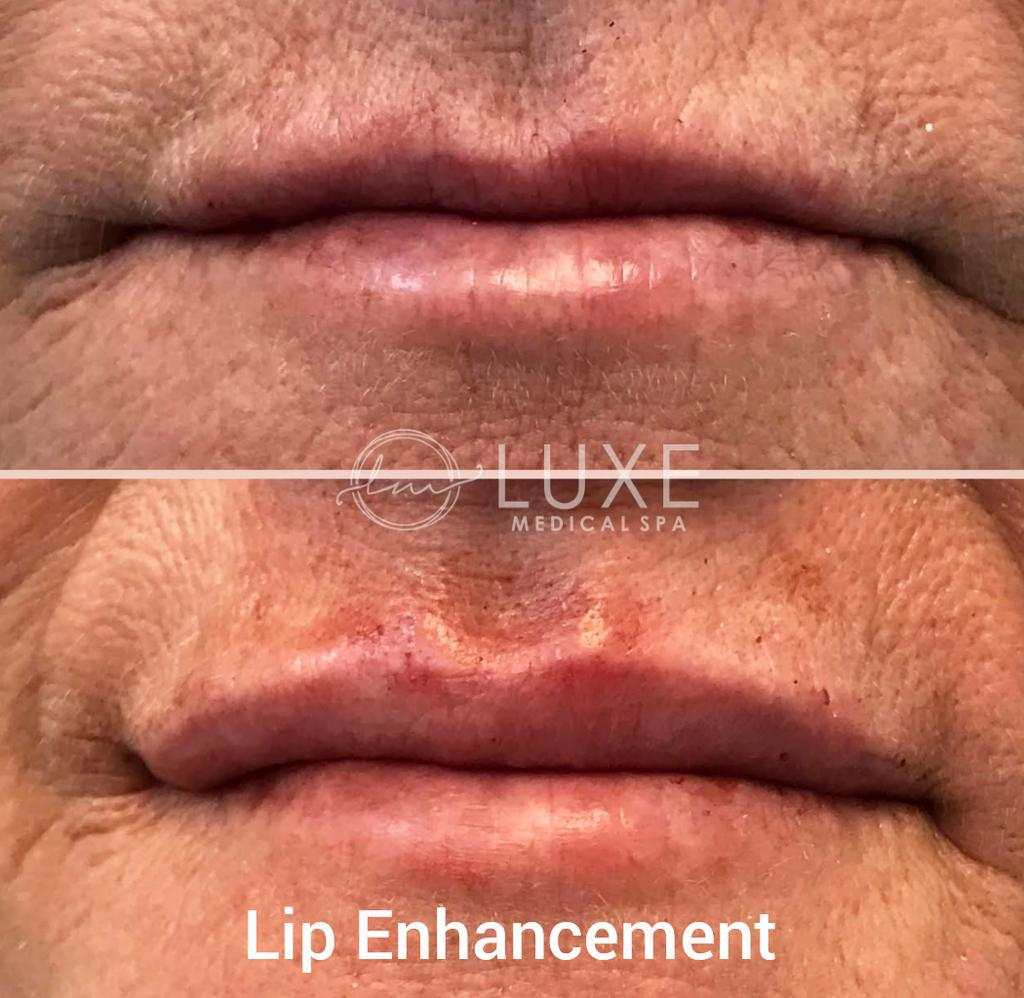 lip injection Surgeon