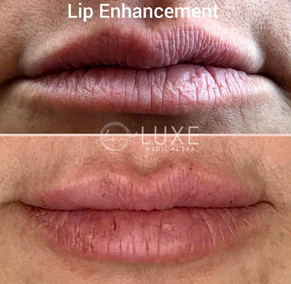 lip injection clinic Ventura