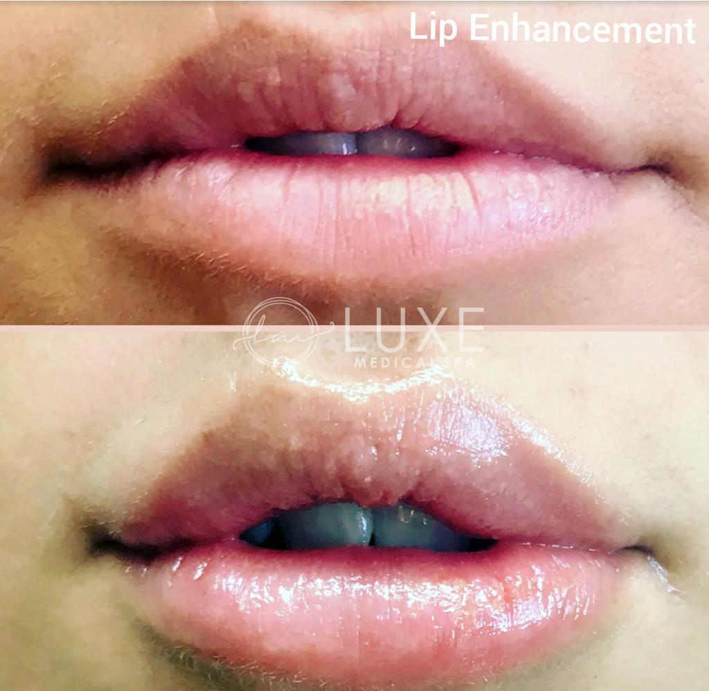 lip injection clinic in Oxnard