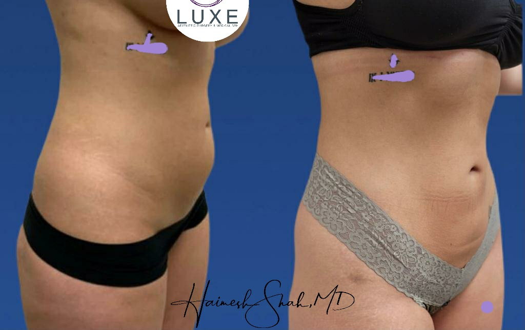 best hi def lipo clinic in simi valley