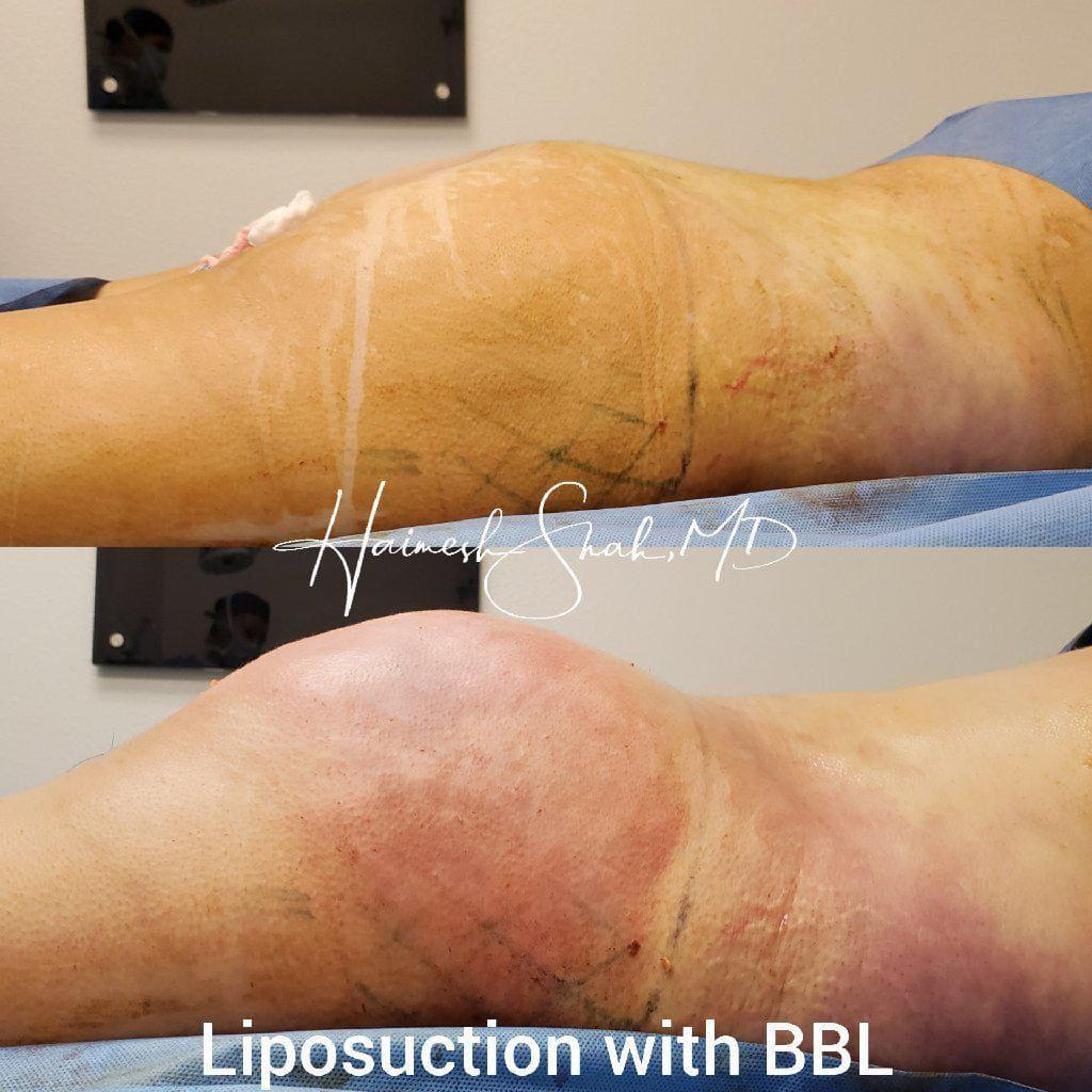 liposuction best doctors
