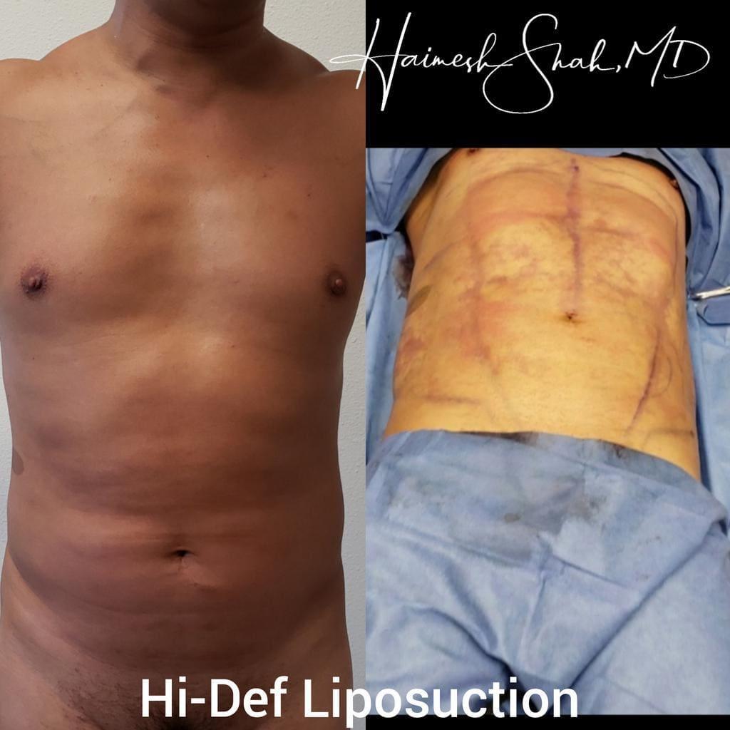 liposuction top surgeon