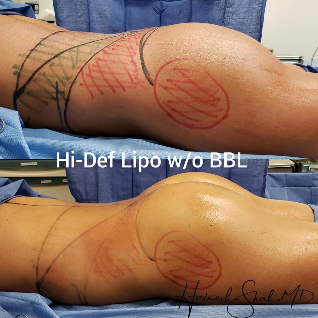 best liposuction doctor