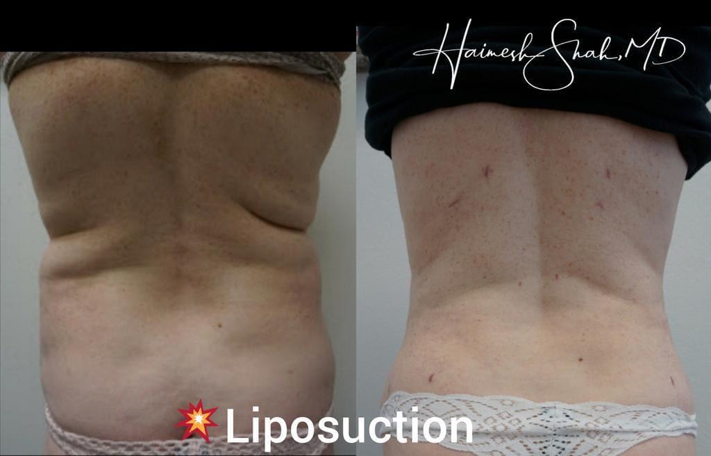 best liposuction treatment surgeries