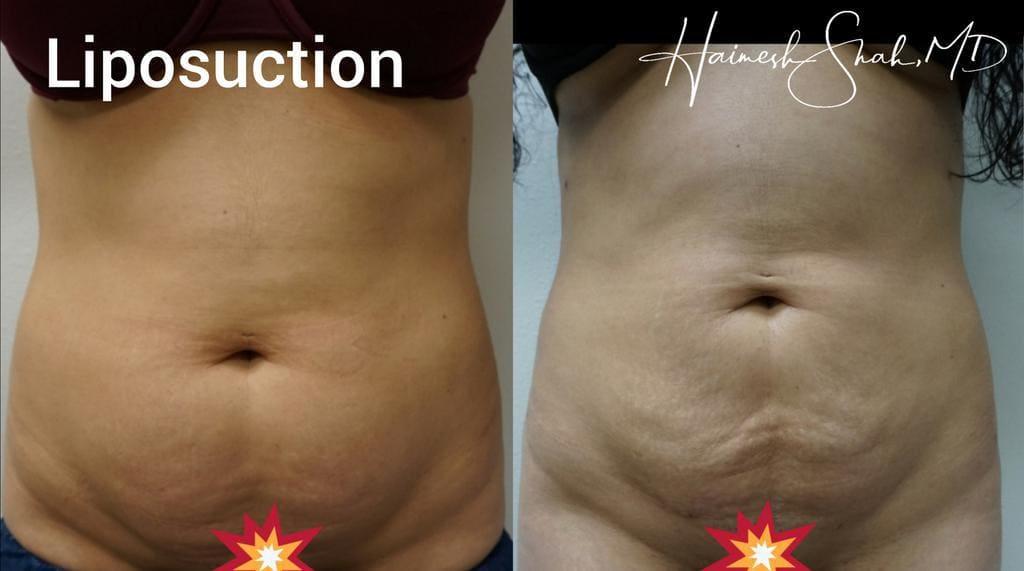 liposuction best treatment surgery
