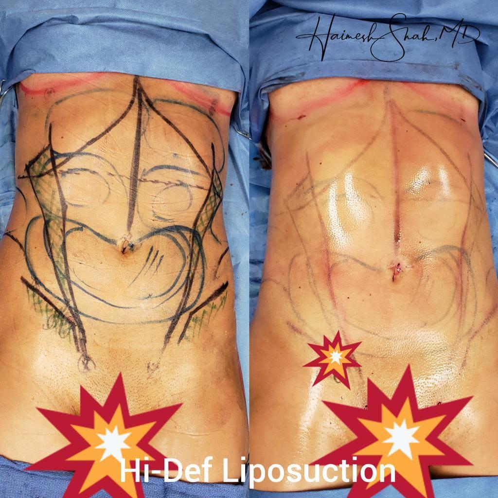 liposuction treatments
