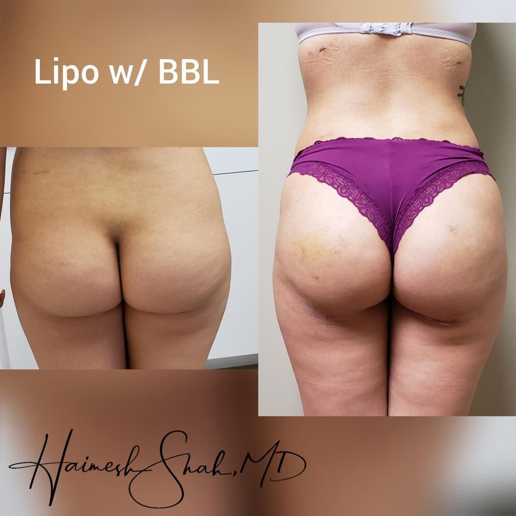 best liposuction treatment surgeon