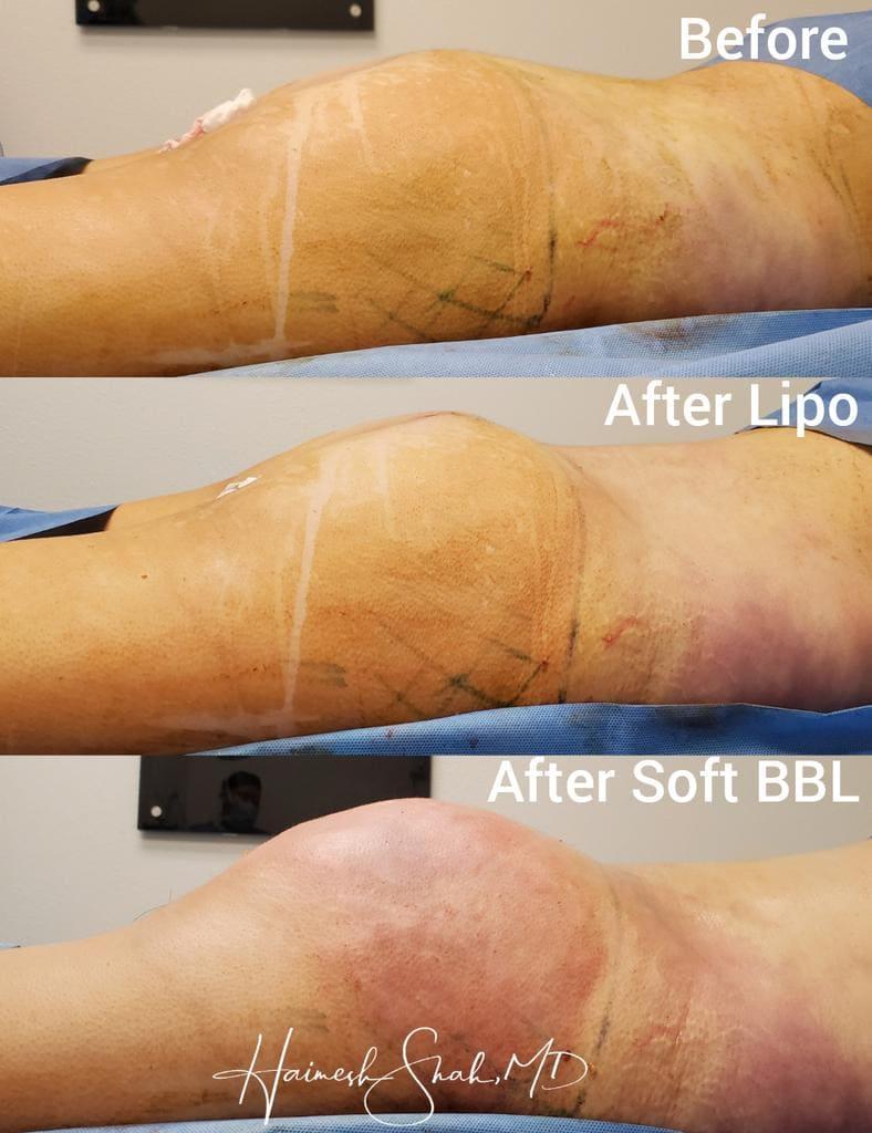 liposuction top treatments