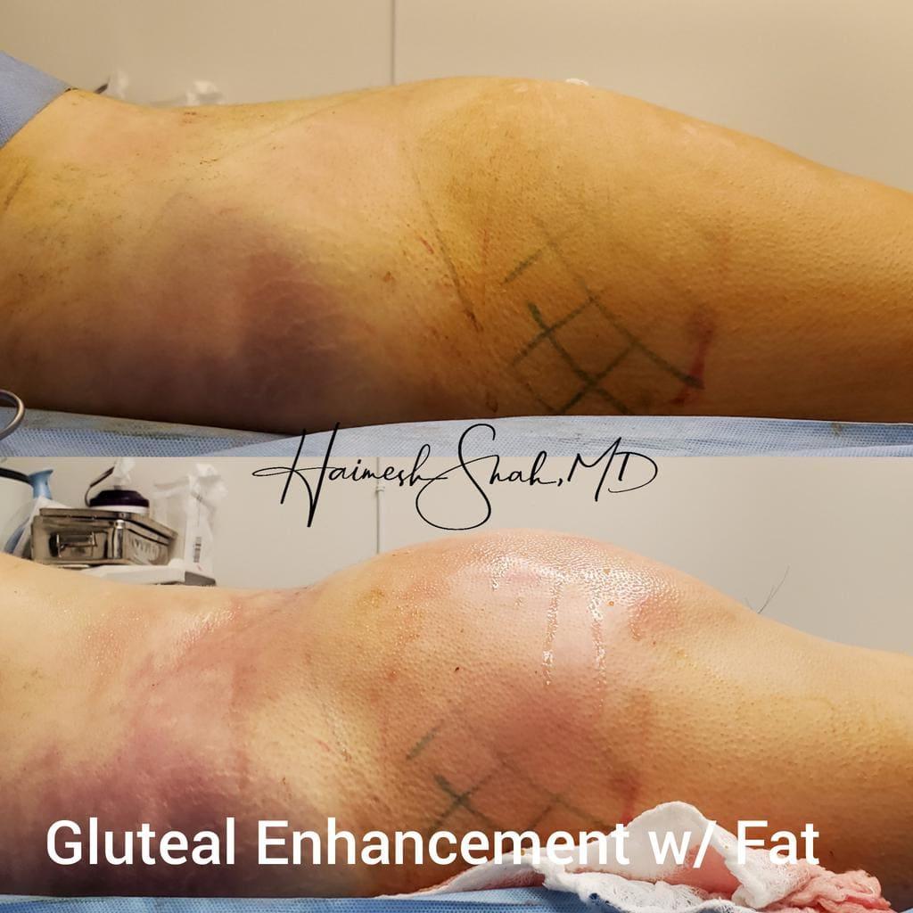 top liposuction treatment