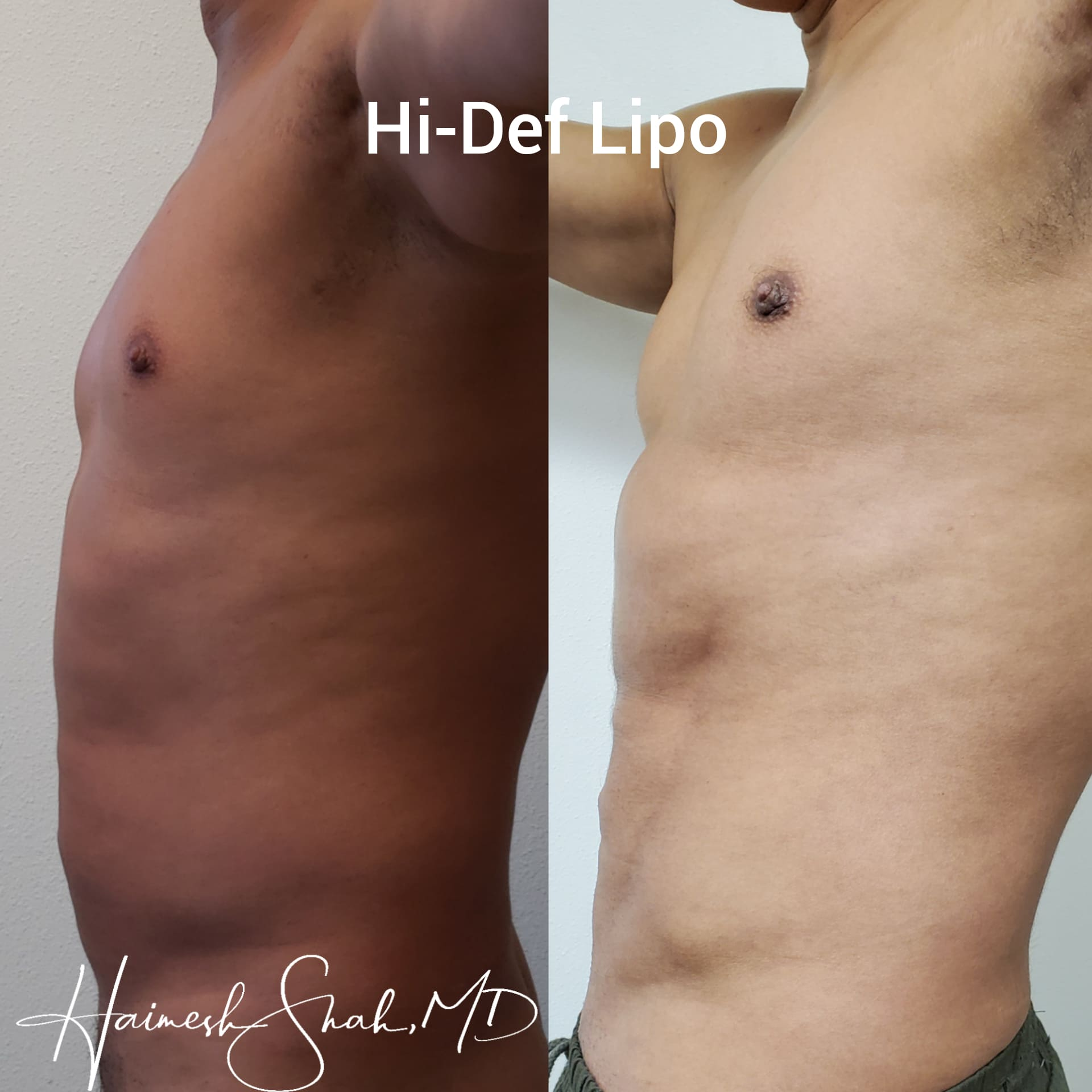 top liposuction treatment surgery in Oxnard