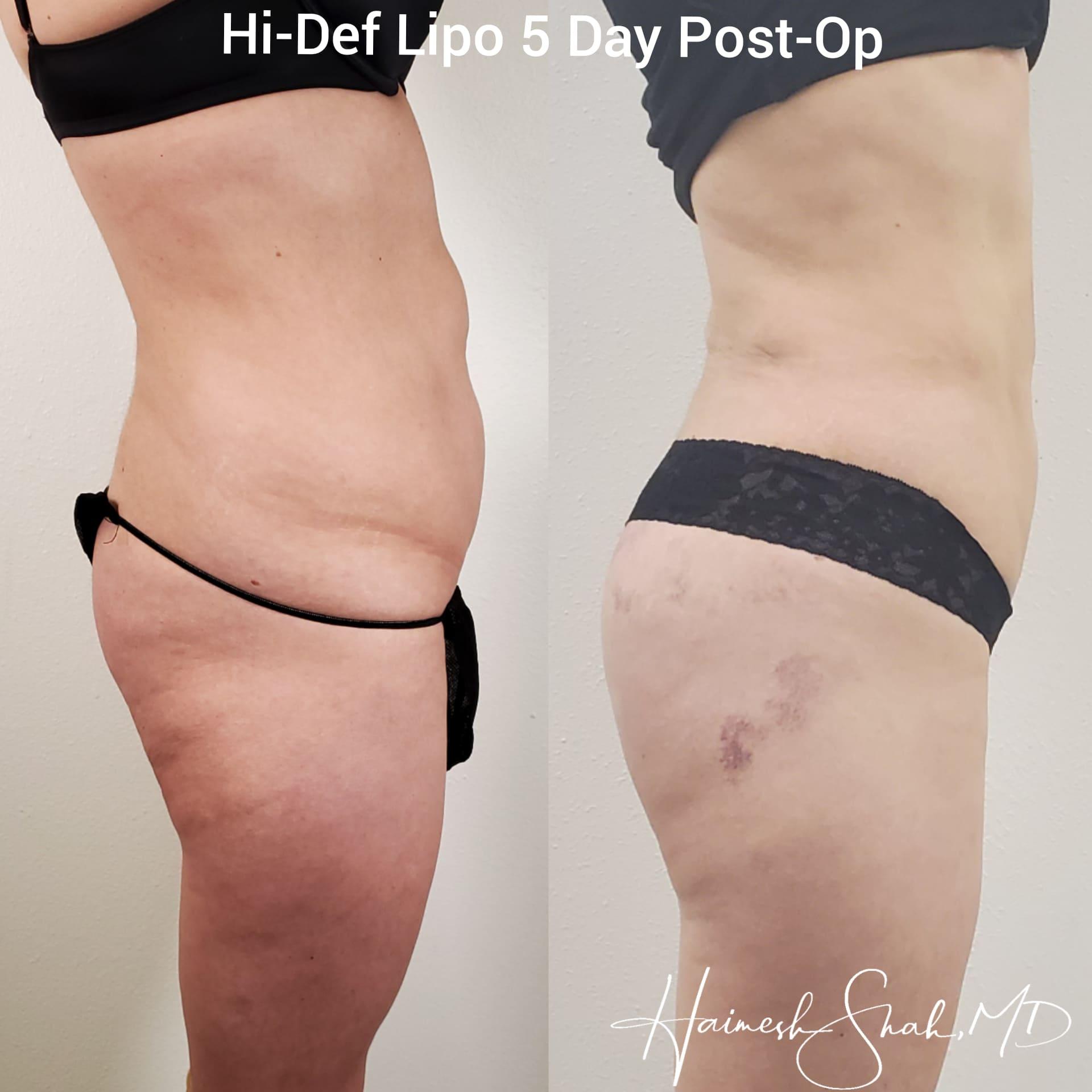 liposuction center