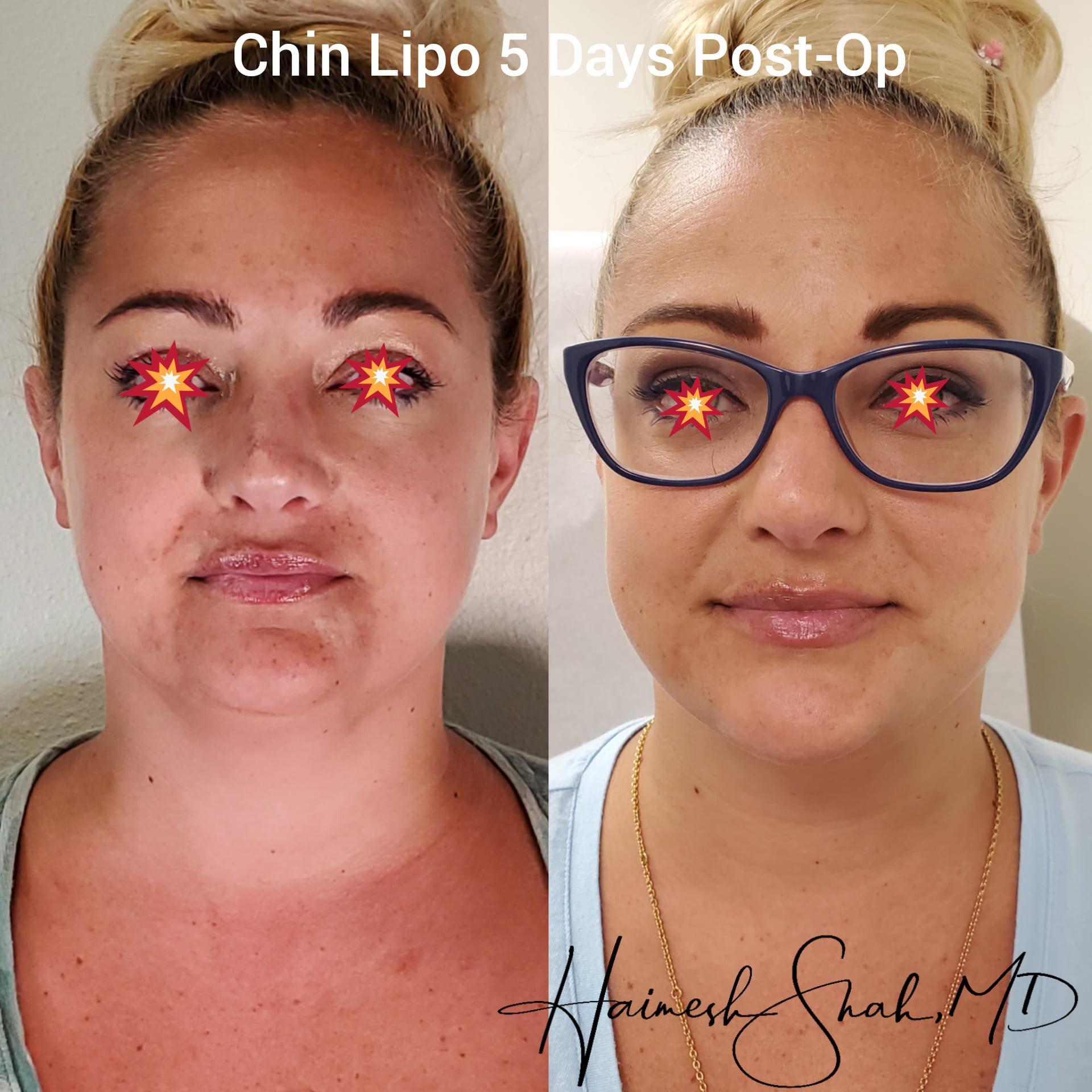 liposuction best treatment surgeon