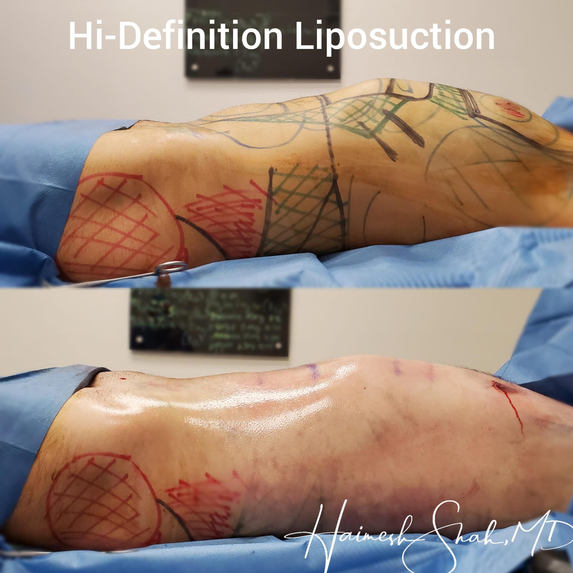 liposuction treatment clinic