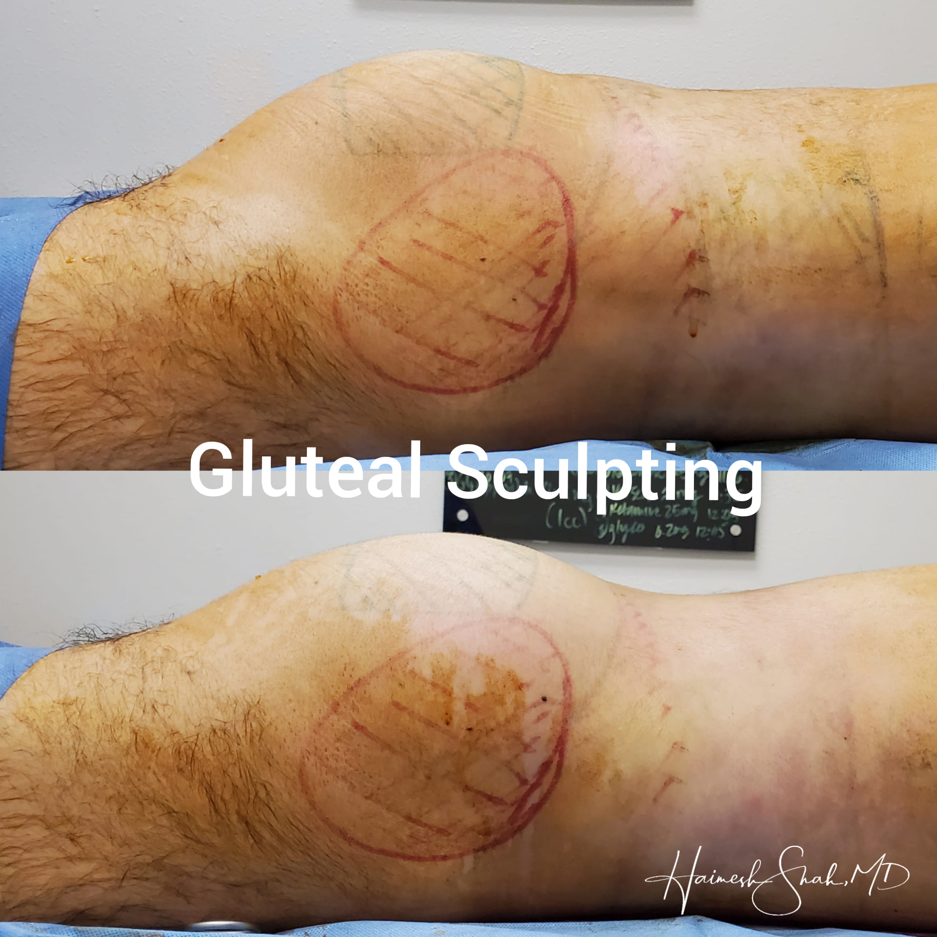 liposuction top treatment clinic