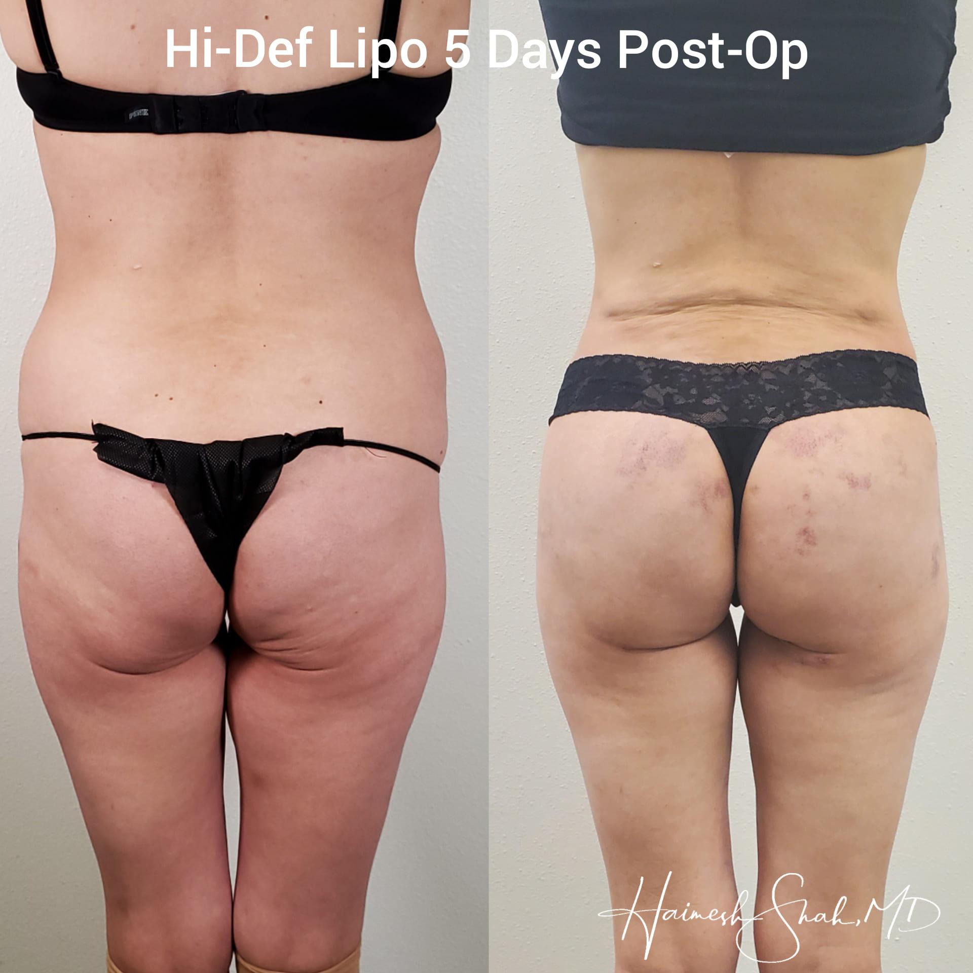 liposuction surgeon
