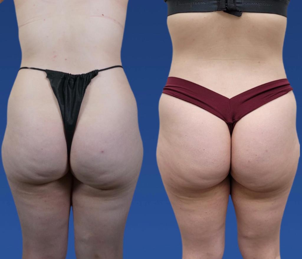 best liposuction oxnard