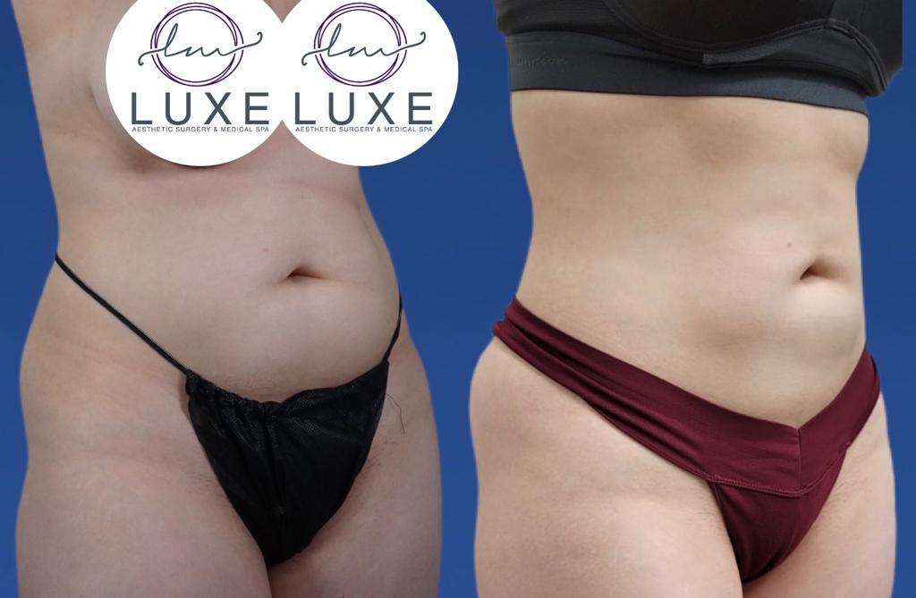 best liposuction surgeon oxnard