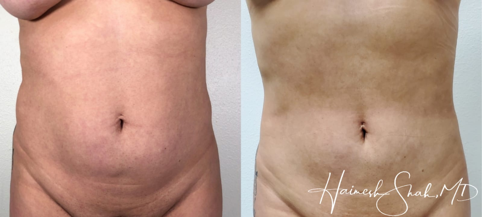 liposuction top treatment surgery in Oxnard