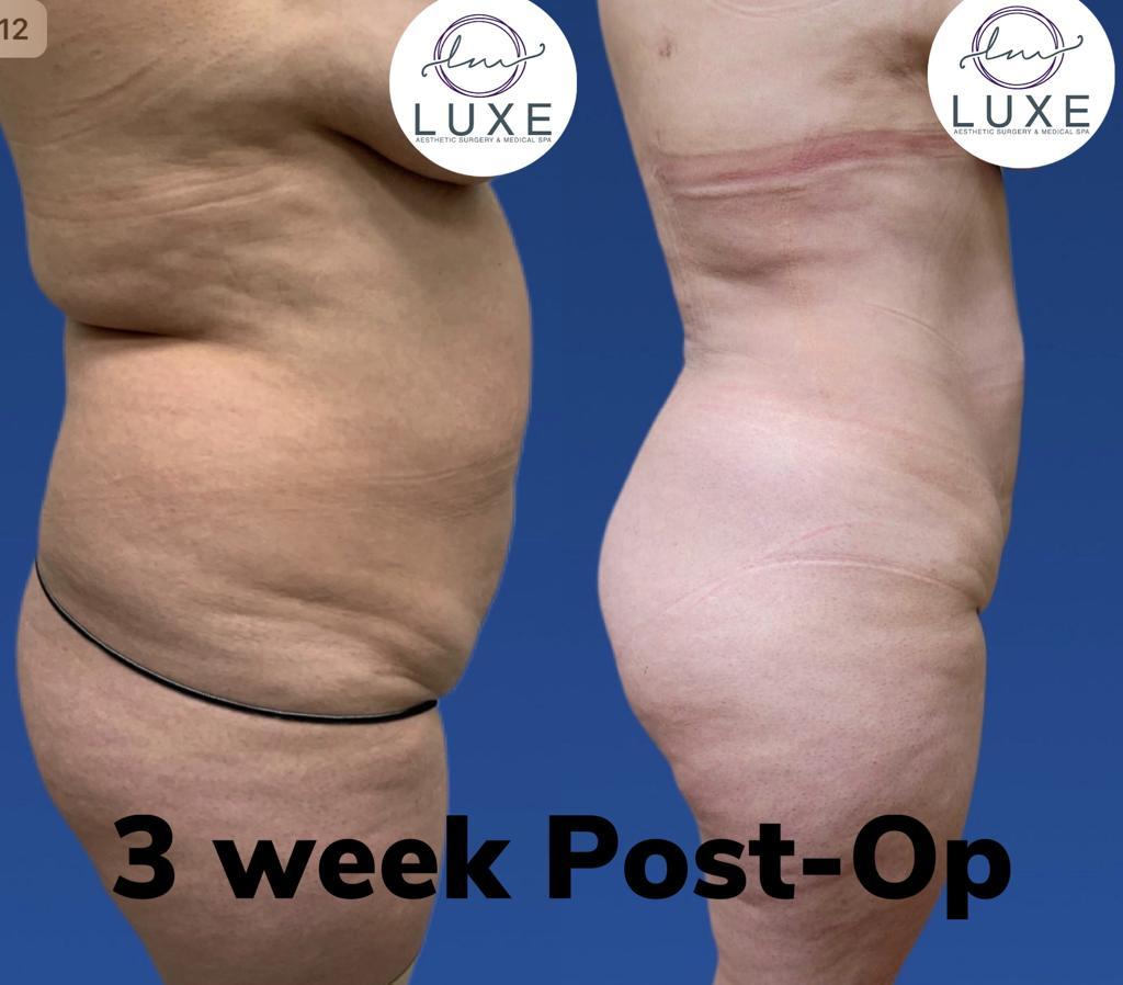 best vaser liposuction clinic camarillo