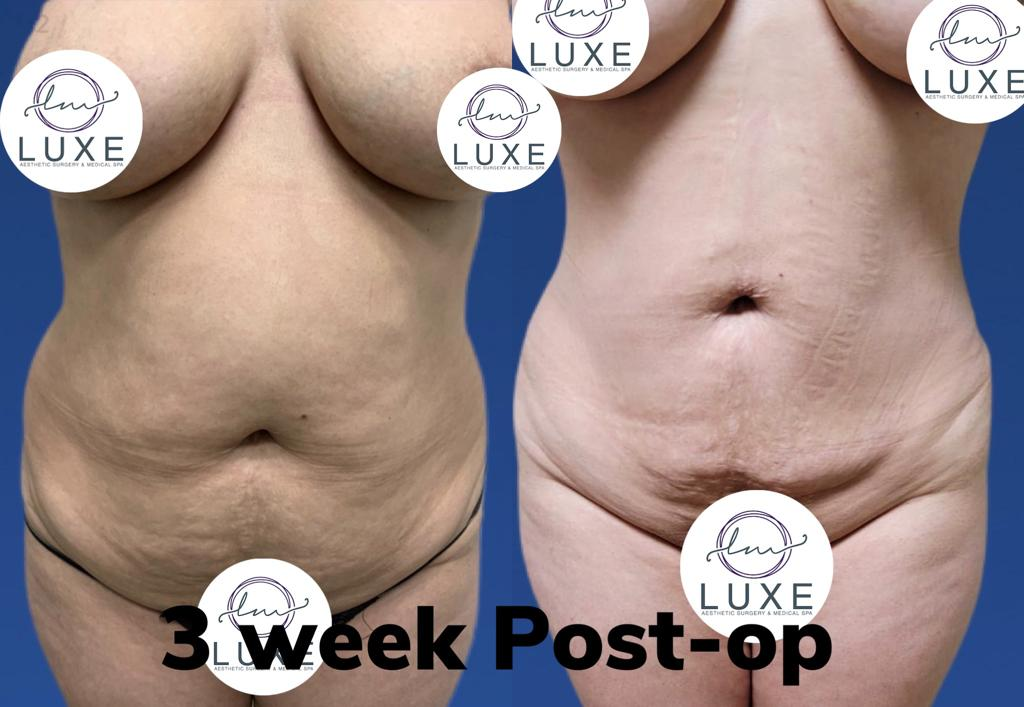 best vaser liposuction clinic oxnard