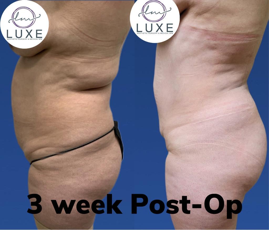 best vaser liposuction clinic simi valley