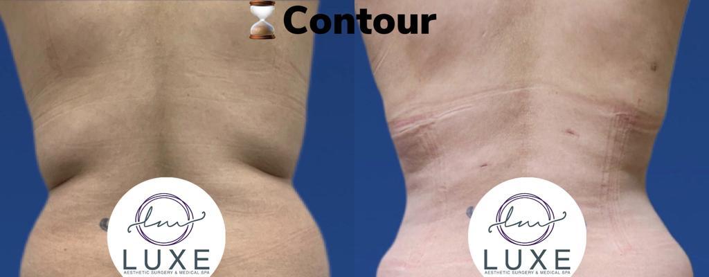 best vaser liposuction doctor camarillo