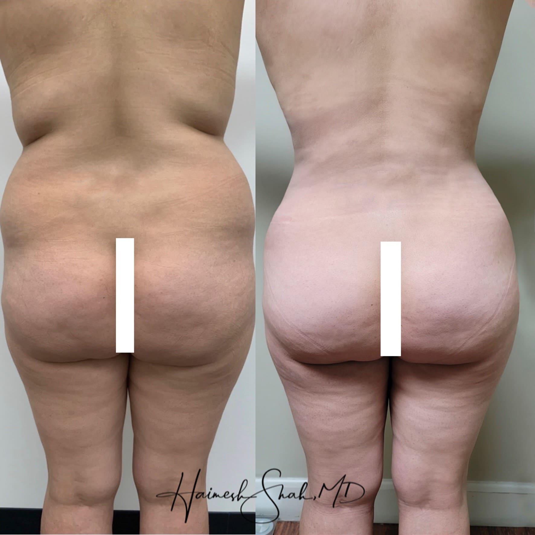 best vaser liposuction clinic ventura