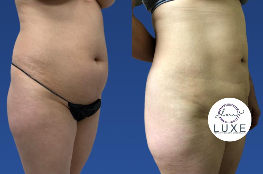 best vaser liposuction treatment camarillo